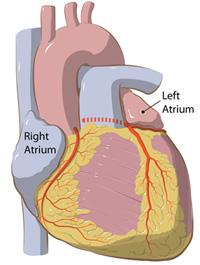 da Vinci Surgery for Atrial Fibrillation