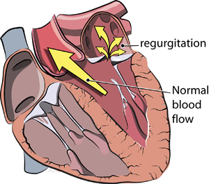 Symptoms of Leaky Heart Valve - da vinci