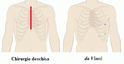da Vinci bypass-ul coronarian