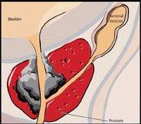 cancer de prostata stadiu 4 - da vinci