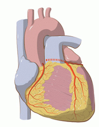 Chirurgia bolii coronariene