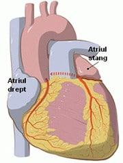 Chirurgia da Vinci pentru fibrilatia atriala