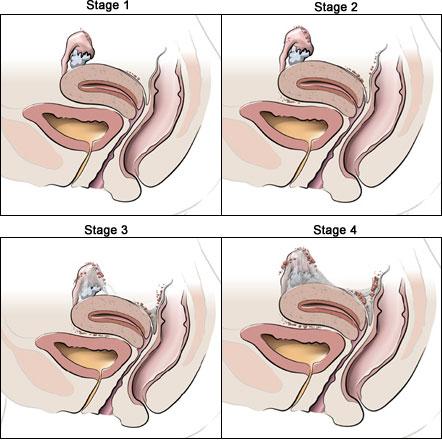 Stages of endometriosis- da vinci Surgery