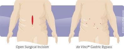 da Vinci Gastric Bypass