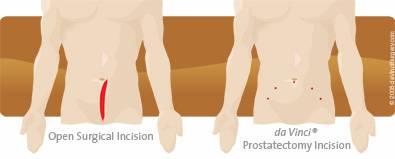 da Vinci Prostatectomy