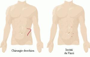 Nefrectomia