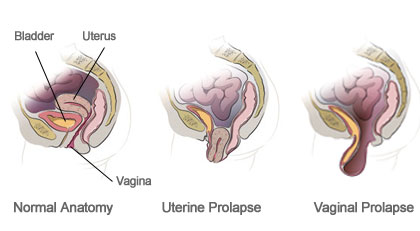 Anatomy of the Vagina- Robotic surgery