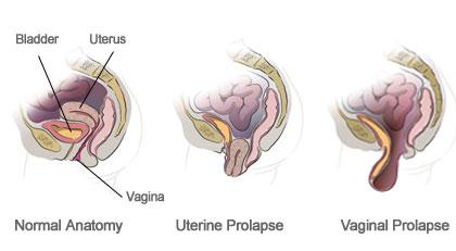 Anatomy of the Vagina- Robotic surgery