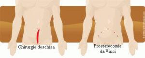 Prostatectomia da Vinci