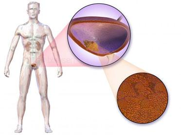 Cancerul de vezica urinara