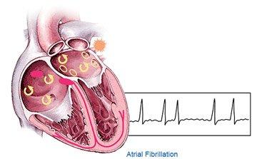 Fibrilatia atriala