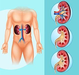 pierderea în greutate carcinom de celule renale
